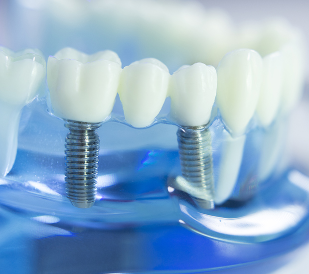 McKinney Dental Implants